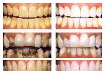 Зубы зубы