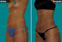 Marcacion Abdominal Femenina / Es llevar  la #lipolisis a máxima  expresión de arte  Definiendo la musculatura #Abdominal  http://lipolisiscolombia.com/cirugia-estetica-coporal/lipolisis-femenina  http://www.gerardocamacho.com/Cirugia-Estetica/Corporal-Mujeres/Laser-Lipolisis-Liposuccion-Bogota-Colombia/