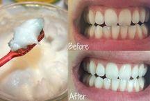 voor je tanden
