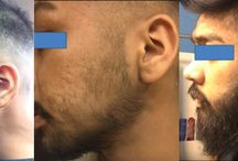 Patchy Beard Transformations