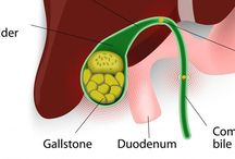 9 Best Natural Remedies for Gallstone