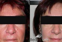 IMAGE hámlasztás eredmények / Klinikai hatékonyságú hámlasztások eredménye. Gyors, fájdalommentes, nincs munkából kimaradás. Ebédidőben is elvégezhetők, az eredmények magukért beszélnek.