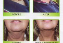 IT Works! Facial