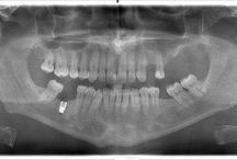 Dental surgery in Romania. / In need for maxillofacial surgery and looking for an oral surgeon? Do you need to know how much is jawline surgery , wisdom teeth removal cost, dental extraction , bone graft or dental implants? See here everything you need to know anout dental surgery in Romania.