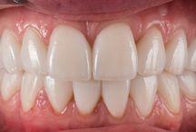 Dentcof (teeth) / Just teeth photography