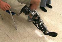 Bionics Using Mind Control