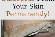 Bli av med porer