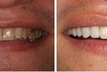 Smile Make-Over / Dentistry of Miami http://www.dentistryofmiami.com/