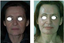 Peelings / Les peelings permettent de réduire les tâches pigmentaires, affiner le grain de peau, estomper les cicatrices d'acné, diminuer les ridules et donner un nouvel éclat au visage, cou et décolleté.