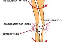 Flat Feet! Fallen Arches! Plantar Fasciitis! A Pain!