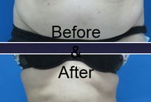 Liposuction in Bangkok Thailand / Why choose Liposuction? Lipo - Liposuction or body-contouring has already been the choice for thousands of people, men and women. It comes with great results for areas like upper and lower abdomen, six pack, flanks, love handles, arms, hips, male breast, waist, stomach, back, inner and outer tight.