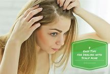 Easy Tips for Dealing with Scalp Acne / Home remedies for scalp acne