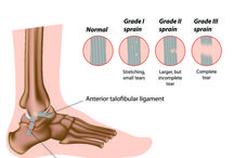 Ankle Injuries and Treatment / Anything related to ankle damage and repair.