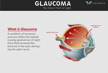 Glaucoma / What is Glaucoma and how to treatment Glaucoma, find Glaucoma Causes Symptoms and Treatment information from LifeUnfold.com https://www.youtube.com/watch?v=c8aO08xYtEE