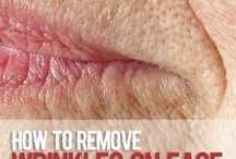 Wrinkles remover