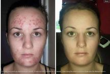 Before / After - Luminesce CELL Rejuvenation  SERUM / I can not believe how much I love this skincare!! Only technology in the world!  Adult Stem Cell Technology!! Jeunesse - Luminesce Serum has over 200 growth factors to completely help skin HEAL ITSELF!! see more on my website at  www.lindiedge.jeunesseglobal.com