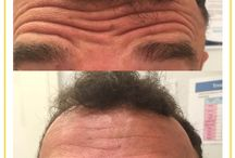 Wrinkle Injections / Muscle Relaxants / Antiwrinkle