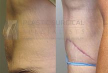 Tummy Tuck / Information, before & after pictures of abdominoplasty (tummy tuck)