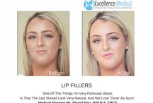 Excellence Medical Clinic Treatments