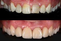 Dentista in Romania. / Dentista in per Voi ! Hai bisogno di cure odontoiatriche e il costo è troppo alto nel tuo paese? Odontoiatria conveniente per voi nelle nostre cliniche dentali in Romania ! Vi invitiamo a vedere qui !