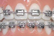 Feste Zahnspangen / Die feste Zahnspange eignet sich, um Zähne gerade auszurichten, um Zahnreihen zu verschieben und damit Platz für verlagerte Zähne zu schaffen oder um Lücken zu schließen. Innerhalb dieser Verschiebung können einzelne Zähne aufgerichtet, gedreht oder in den Zahnbogen eingereiht werden.