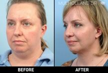 Face Lift / Face Lift and facial rejuvenation before and after photos