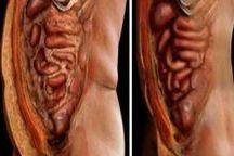 emoty fat deposits
