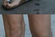 orthopediese skoene