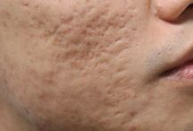 Eliminate acne scars / all info about scars, images and treatments to heal scars