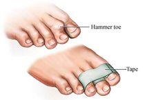 splinting & taping