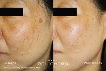 Pico Genesis / Pico Genesis is a medical treatment that targets  Sun/Age Spots Pigmentary Concerns Brighter/RadiantComplexion Even Skin Tone Return Skin To Its Youthful State This treatment revitalizes the skin and evens out skin tone.