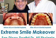 All On 4 Dental Implants in San Diego / All on 4 dental implants allows the implantation to take place even in the mouths of people who have less than adequate amounts of bone. Dentures are replacements for missing teeth. At Extreme Smile Makeover in San Diego California Dr. Ali Shojania provides All on 4 dental implants   http://www.extremesmilemakeover.com/
