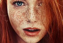 REDHEADS/FRECKLES