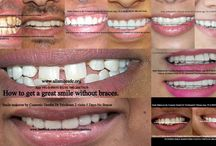 much does a smile makeover cost / Any adult having teeth with gaps, crooked teeth, over sized, small teeth, dark teeth, protruding or fractured teeth is a candidate for smile makeover.These are a few of the cases we have treated here at All Smiles-  cosmetic dentistry byDr Trivikram (Dr Vikram),an expert cosmetic dentist in Bangalore.ALLSMILES -.only at - N0.64, SHANKAR MUTT MAIN ROAD BASAVANAGUDI.(no other branches). BANGALORE-560004. PH +91-0- 98450 85230.080-26673439.More at http://www.allsmilesdc.org/cosmetic-dentistry/