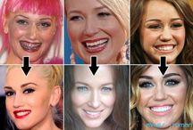 Celebrities Smile Makeover / Check who got a smile makeover?