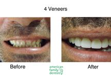 Creating Attractive Smiles / Before & after images of cosmetic & restorative dentistry by the team at American Family Dentistry