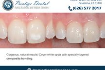 Before and After Dental Cases - Pasadena Dentist / Please enjoy our gallery of dental procedures! All treatments were proudly completed by our Pasadena dentist, Dr. Vasag Bouzoghlanian. http://prestigedentalpasadena.com/smile-gallery.aspx