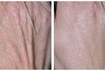Cosmetic Treatments with fillers