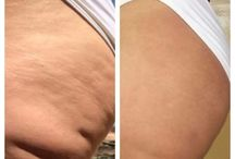 Nerium Firming Cream / Amazing before and after pictures from real people with real results.