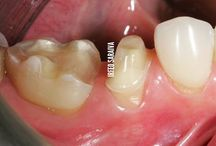 tooth prep