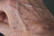 Skin Age Spots...