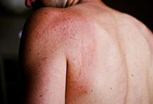 Skin Diseases & Disorders / Know the causes, symptoms and treatment options for different types of skin diseases and disorders.