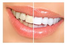 Tooth Whitening at Spa@Bannockburn. / Professional Tooth Whitening available. Prices start at £99 and done by dentist and Spa owner Patricia Manson. www.spabannockburn.co.uk