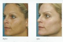 Best  Photofacial Treatment in Chicago, Oak Brook. / Contact us Charming Skin & Vein Clinics if you want to Improve your skin using Photofacial treatment in Chicago, Oak Brook. To know more about it then call us 630-974-1400 now.