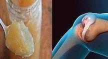 stawy kolana