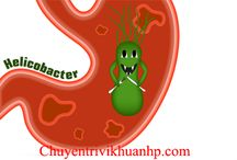 Vi khuẩn hp và bệnh viêm loét dạ dày tá tràng / Vi khuẩn hp và bệnh viêm loét dạ dày tá tràng có mối quan hệ như thế nào xem mọi thông tin chi tiết về vi khuẩn hp với bệnh viêm loét dạ dày hành tá tràng tại link http://chuyentrivikhuanhp.com/benh-dau-da-day/