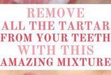 removing tatar