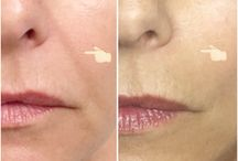 Mesotherapy / Mesotherapy is the injection of natural nutrients under the skin into the mesoderm layer.