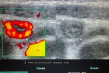 acute appendicitis: http://www.ultrasound-images.com/appendix/