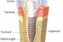 Products I Love / Tilbud på implantater, yes!